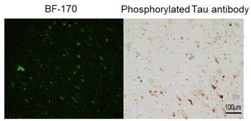 Staining image of neurofibrillary tangles with fluorescent probe BF-170