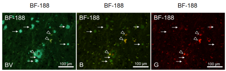 Staining image of senile plaques and neurofibrillary tangles with fluorescent probe BF-188
